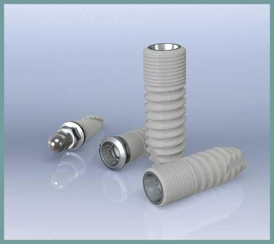 Implantate-ICX-A&P-Zahnmedizin-Hannover